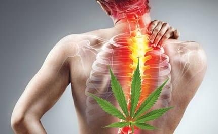 Cannabis y el dolor