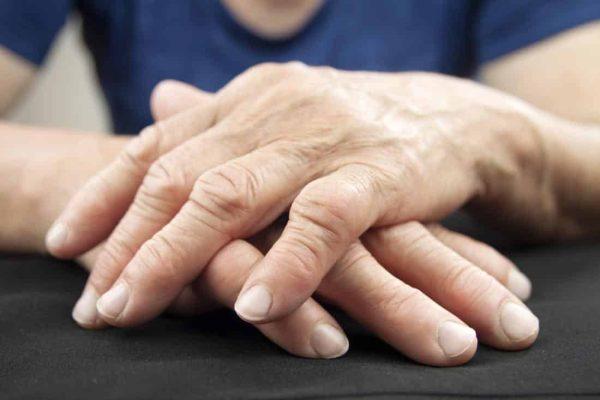 Crema de Cannabis para la artritis